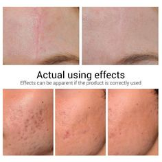 Acne Advice For People Wanting Blemish Free Skin Best Acne Scar Removal, Acne Scar Removal Treatment, Pimple Scars, Acne Scars, Stretch Marks On Thighs, Best Acne Products, Types Of Acne, How To Get Rid Of Pimples, Shrink Pores