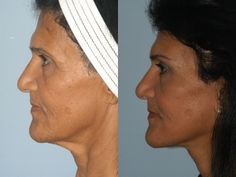 57 year old Facelift & Lateral Brow Lift Facelift Before And After, Before After Photo, Brow Lift Surgery, Look Older, Sagging Skin, Jawline, Photographs, Photos, Brows