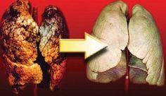 Όλοι γνωρίζουμε ότι το κάπνισμα είναι βλαβερό για την υγεία και συχνά είναι η κύρια αιτία καρκίνου. Ωστόσο, αν δεν μπορείτε να κόψετε το κάπνισμα, υπάρχουν διάφοροι τρόποι για να καθαρίσουν οι πνεύμονες από την πίσσα