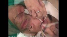 no surgical Treatment: Under Eye Dark Circles drurtis . Trattamento occh...