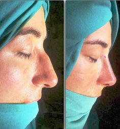 163 Best surgery images in 2019 | Rhinoplasty, Nose surgery
