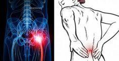 Έχετε Πόνους στη Μέση..Ο πόνος που περιλαμβάνει το ισχιακό νεύρο, το οποίο ξεκινά από την μέση και φτάνει στα πόδια, είναι γνωστός ως ισχιαλγία. Ωστόσο, όπως θα δείτε στο παρακάτω βίντεο, η ισχιαλγία δεν αποτελεί διάγνωση.