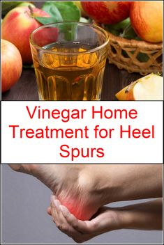 Commonly this problem appears when you walk a long time with heels because when you walk for a long time with heels blood cannot flow properly in your feet. Diy Foot Soak, Foot Soaks, Foot Soak Vinegar, Listerine Foot Soak, Foot Soak Recipe, First Aid For Kids, Home Treatment, Acv, Plantar Fasciitis