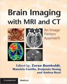 Medical Ebook: Brain Imaging with MRI and CT: An Image Pattern Ap...