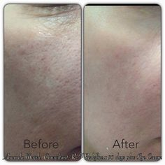 """Consultant Amanda Hale Marsh: """"Hey everyone! I've finally gotten the courage to post my before and after Rodan and Fields pics! This is 3 months after using Redefine regimen and Eye cream! Before Rodan and Fields, I used to have to see an Esthetician once or twice a month for my problematic skin. Not only was it expensive, it did not deliver results like these! Lines under eyes are diminished and Pores are smaller and cleaner!"""" http://jaimiemedley.myrandf.com #skincare #beauty #antiaging"""