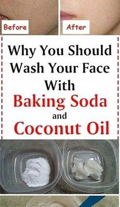 Soda and Coconut Oil Face Mask For Dry Skin - - -Baking Soda and Coconut Oil Face Mask For Dry Skin - - - Coconut Oil Facial, Coconut Oil Beauty, Coconut Oil For Face, Mask For Dry Skin, Oil For Dry Skin, Dry Skin On Face, Oily Skin, Facial For Dry Skin, Baking Soda Mask