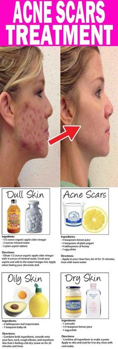 Repin - Do you want to get rid of acne and imperfection on your skin, try this and you won't regret it. #acne #acnefree #perfectskin #cleanskin