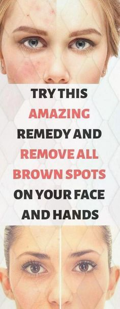 How to get Rid Of Brown Spots on Face Black Spots On Face, Brown Spots On Hands, Age Spots On Face, Skin Spots, Dark Spots, Acne Spots, Sunspots On Face, Anti Aging, Are You Serious