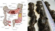 Colon is always considered as an important organ in the body as it eliminates the