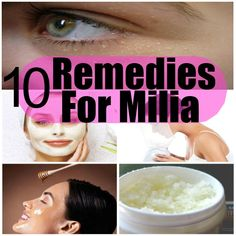 Milia is a condition in which little bumps - yellow or white in color - appear under the eyes and around the eyes. Sometimes milia,… Organic Skin Care, Natural Skin Care