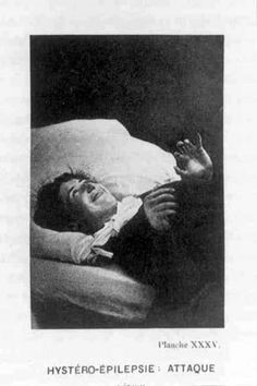 Photographs: From the book Iconographie Photographique De La Salpêtrière (1877-1880), sourced from Wikipedia Commons and The Waring Historical Library online exhibit Dr. John-Martin Charcot and the Theater of Medicine.