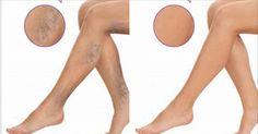 Naše pokožka je křehká a jemná. Chrání nás před četnými nemocemi a zraněním. Také hraje důležitou roli vnašem vzhledu. Pokud chcete vypadat zdravě, je potřeba, aby vaše pleť byla čistá, jemná a také zdravá. Krásné nohy jsou vizitkou žen Ženy vždy chtějí ukázat své nohy, ale existuje celá řada důvodů, proč jich to spousty neudělá. …