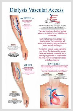 diaysis access illustrations | Hemodialysis Grafts - Registered Physician in Vascular Interpretation