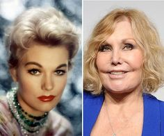 Ladies do not do this to yourself!! Kim Novak Plastic Surgery Before and After
