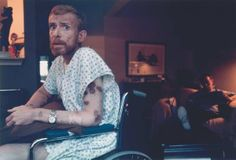 1986: Ken Meeks' (42) skin is marked with lesions caused by Aids-related Kaposi's Sarcoma. (By Alon Reininger)
