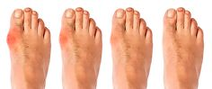 What are bunions? A bunion is a bony bump that forms on the joint at the base of your big toe. A bunion forms when your big toe pushes against your next toe, forcing the joint of your big toe to ge… Bunion Remedies, Gout Remedies, Health Remedies, Holistic Remedies, Natural Cures, Natural Healing, Get Rid Of Bunions, Bunion Relief, Gout Relief