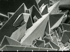 Kidney Stone under a microscope
