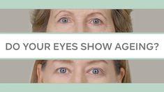 Beauty Secrets, Beauty Hacks, Vampire Facial, Skin Care Home Remedies, Droopy Eyes, Eye Lift, Cosplay Makeup, Natural Face, Tips Belleza