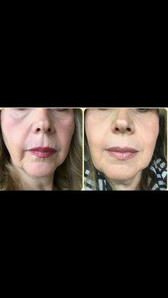 Quieres estos resultados maravillosos en tu rostro? Llama: 0445514749469