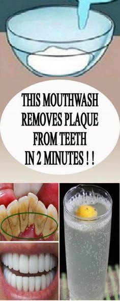 This mouthwash remov