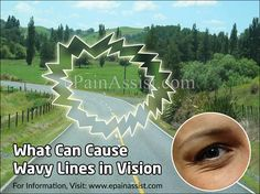 Wavy lines in vision can be a common problem for some people. This occurs when you see wavy lines instead of straight lines and is also known as metamorphopsia. The main causes of wavy lines in vision, can be ocular migraine and macular degeneration. Ocular Migraine, Eye Pain, Information Center, Line, Canning, Eyes, Fishing Line, Home Canning, Cat Eyes