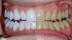 A dental crown is a tooth-shaped cap fitted over a tooth to cover it. Find porcelain crown near you in Houston TX at URBN Dental, Get help to improve your appearance of tooth and smile. Contact Us Today at Gum Health, Health Tips, Dental Crowns, Benefits Of Coconut Oil, White Teeth, Dental Care, Teeth Whitening, Zoom Whitening, Cellulite