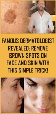 The way to Get rid of Brown Spots on Face Natural Health Remedies, Herbal Remedies, Blackhead Remedies, Health And Beauty Tips, Health Tips, Health Care, Health Heal, Health Benefits, Black Spots On Face