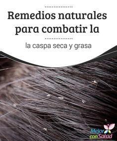 Remedios naturales para combatir la caspa seca y grasa  La caspa es un trastorno cutáneo que se produce en el cuero cabelludo a causa de la infección de un hongo conocido como malassezia globosa.