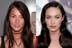 Megan Fox before and after nose job - Celebrities who have had a nose job -