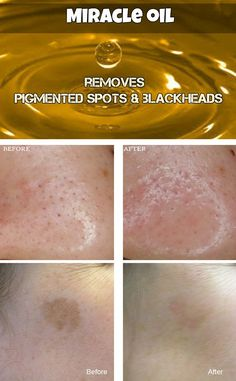 Miracle oil that removes pigmented spots, blackheads and beautifies skin
