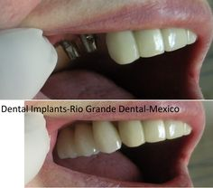 Dental Implants/ before and after pictures