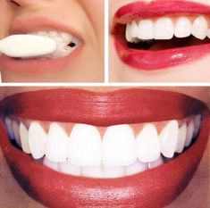 Fast Way To Whiten Your Teeth After The First Treatment! ✨ #Beauty #Trusper #Tip