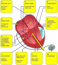 ECG Quick Reference