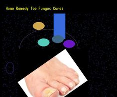 Home remedy toe fungus cures - Nail Fungus Remedy. You have nothing to lose! Visit Site Now
