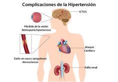 Los-mejores-alimentos-para-combatir-la-hipertension-arterial