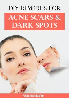 DIY Remedies for Acne Scars and Dark Spots
