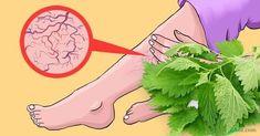 Zázrak na kŕčové žily, ktorý vám rastie rovno pod nosom. Body Care, Health And Beauty, Aurora Sleeping Beauty, Health Fitness, Herbs, Skin Care, Plants, Gardening, Cooking