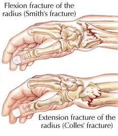 smith's fracture and Colle's fracture