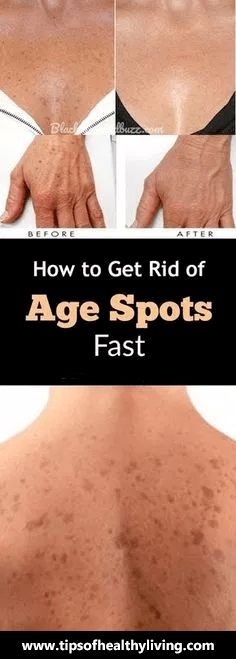 How to Get Rid of Brown Age Spots on Face and Hands Fast and Naturally Brown spots or as they people also know them – liver spots and age spots appear as flat and brown or dark spots on the skin. Black Spots On Face, Brown Spots On Hands, Age Spots On Face, Spots On Legs, Skin Spots, Dark Spots, Liver Spots On Hands, Warts On Hands, Warts On Face