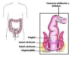 Kolonoszkópia és a fogyás