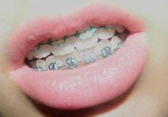 lips with braces - Google Search