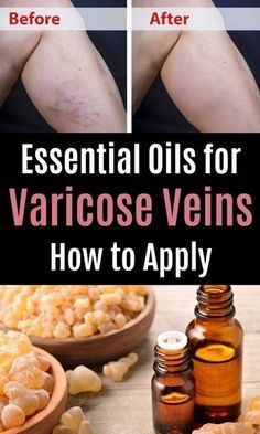 Essential Oils for Varicose Veins – How to Apply it to Get Rid of Spider Vein. With 14 Best Natural Remedies for Varicose Veins Symptoms Essential Oils For Pain, Doterra Essential Oils, Young Living Essential Oils, Essential Oil Diffuser, Essential Oil Blends, Essential Oils Spider Veins, Age Spots Essential Oils, Helichrysum Essential Oil Uses, Lemon Essential Oil Benefits