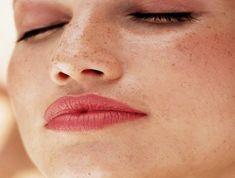 """Piel-con-manchas.-Cutis graso: ¿por qué? Varios son los factores que inciden en la producción excesiva de sebo, como puede ser el estrés, el uso de anticonceptivos orales, los cambios hormonales, el embarazo, la alimentación, la falta de exfoliación y limpieza y los factores genéticos.  Lo que puedes tomar como """"positivo"""" es que, si tienes la piel grasa, cuando envejezcas tendrás menos arrugas que si tuvieras la piel seca. Pero como para ello falta tiempo, es bueno que empieces a tratar tu…"""