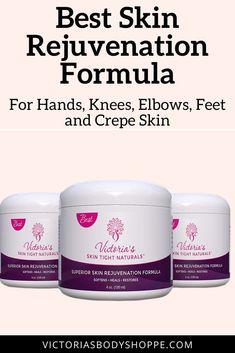 Best Skin Rejuvenation Formula For Hands Knees Elbows Feet and Crepe Skin Skin Smoothing Cream, Skin Tightening Cream, Skin Cream, Loose Skin, Skin So Soft, Natural Skin, Crepe Skin, Skin Secrets, Prevent Wrinkles