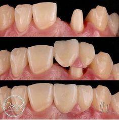 Teeth Health, Dental Health, Dental Care, Medical Dental, Healthy Teeth, Oral Health, Dental Surgery, Dental Implants, Dental Videos