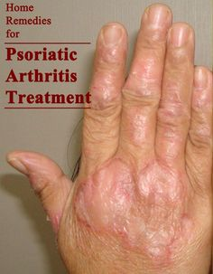 Natural Remedies for Psoriasis.What is Psoriasis? Causes and Some Natural Remedies For Psoriasis.Natural Remedies for Psoriasis - All You Need to Know Psoriasis Disease, Psoriasis Arthritis, Rheumatoid Arthritis Treatment, Knee Arthritis, Arthritis Pain Relief, Arthritis Remedies, Gout, Natural Cures, Home Remedies