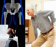 The above image shows hip replacemnet surgery that became the most painful surgery. In times awhen a patient undergoes a failure hip replacement surgery. He needs a proper hip replacement lawyer.