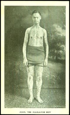 """John Williams, in his own words: """"I am known as...the Human Alligator or Crocodile Boy. I was born [in] 1884, in the condition you see me now...The doctors find by X-Ray examination that my heart, liver, & lungs are located nearly 4 inches lower in my body than the ordinary person; you can see my heart beating way down in the pit of my stomach. My skin all over my body is heavily scaled like that of an alligator. I generally shed my entire skin every 3 months."""""""