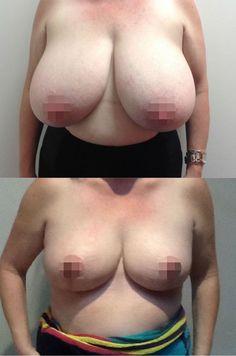 CosMediTour client testimonial - Breast Revision, Phuket Thailand. Stayed at Amari Phuket. Surgery at Phuket International Hospital.