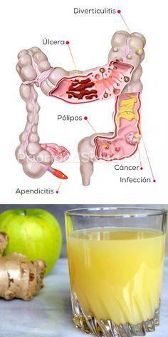Limpieza de colon con este jugo verde d. Explusa las toxinas del cuerpo, ayuda a mejorar la salud y perder peso. Holistic Remedies, Natural Home Remedies, Health Remedies, Detox Drinks, Healthy Drinks, Healthy Tips, Natural Colon Cleanse, Natural Medicine, Health And Beauty